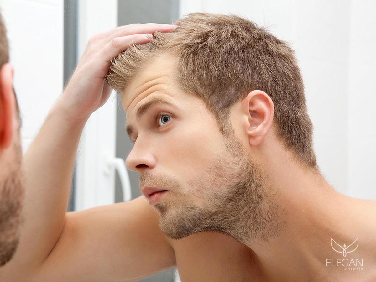 Лечение облысения у мужчин в домашних условиях
