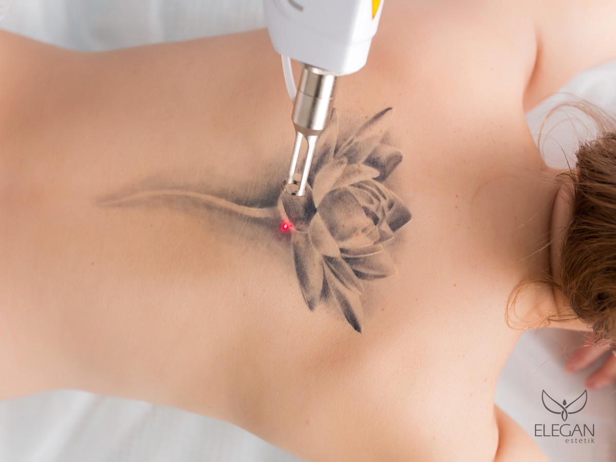 Dövme Sildirme Yöntemleri: Lazer Dövme Silme