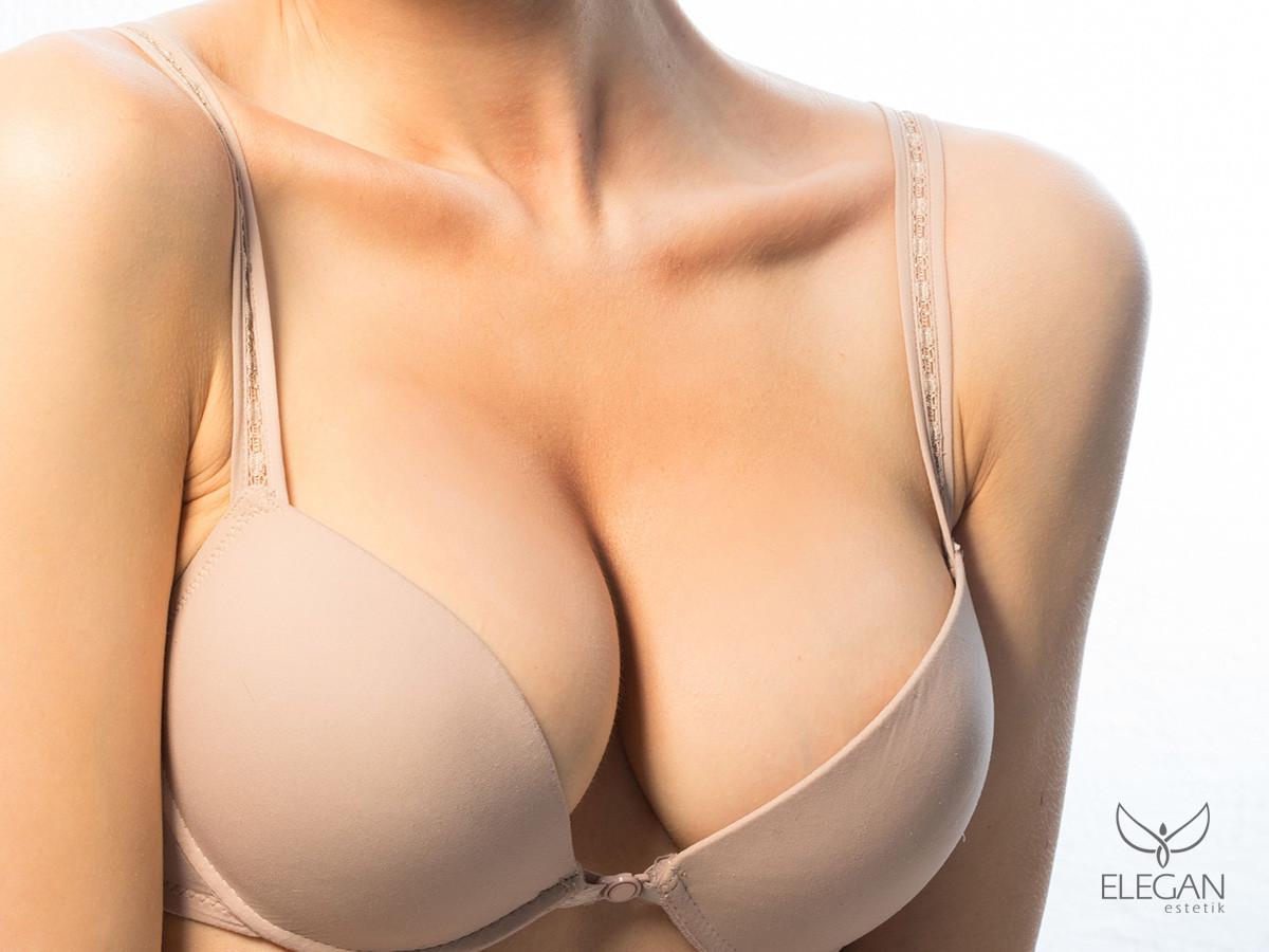 Göğüs Dikleştirme Ameliyatı: Meme Dikleştirme Ameliyatı